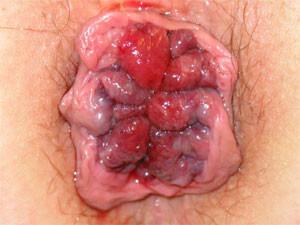 4. stupeň vnitřních hemeroidů