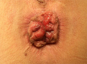3. stupeň vnitřních hemeroidů