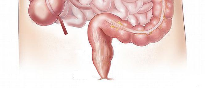 Hemeroidy a hemoroidy